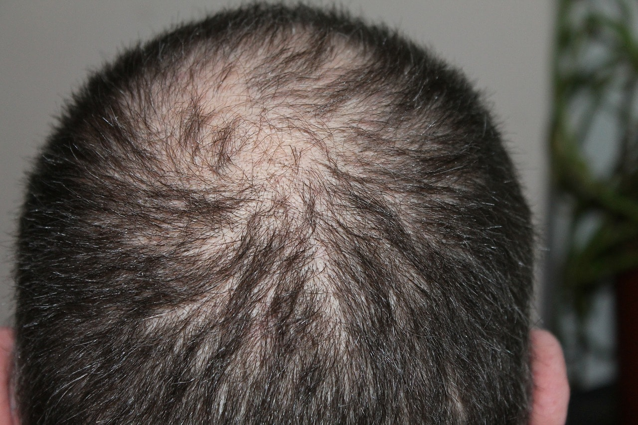 hair loss -alignthoughts